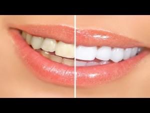 taheri dental healthy teeth